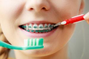 brush teeth orthodontist