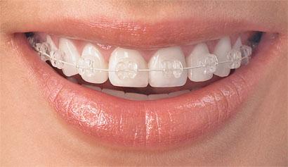 clear-braces-v2_d496b9053061a563c4d544a2ec108624