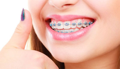 traditional-braces-v2_1aff201131d67bf6edf3182ae7beaa80